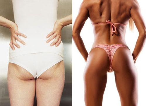 skinny fat vs burn the fat woman